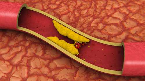 Photo of Медики рассказали, как бороться с высоким уровнем холестерина