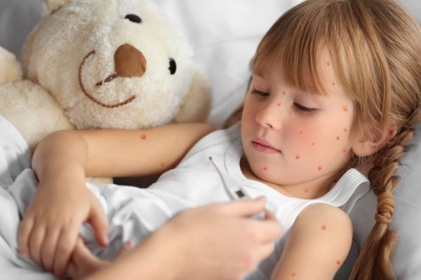 Photo of Ветрянка у ребенка: симптомы и лечение, инкубационный период