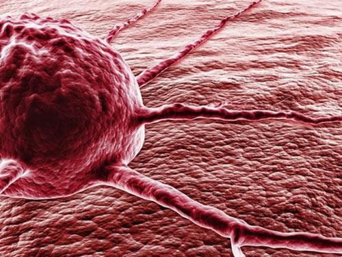 Photo of Эксперты назвали ранние симптомы рака