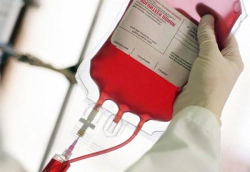 Photo of Эксперты развенчали методику омоложения молодой кровью