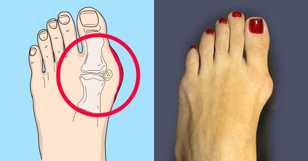 Photo of Шишка на ноге возле большого пальца: как лечить, как снять боль, осложнения (фото )