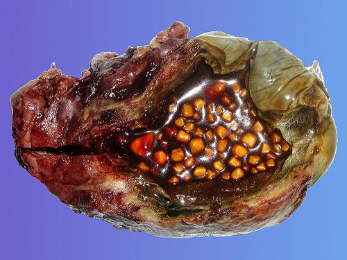 Photo of Как узнать о появлении желчнокаменной болезни