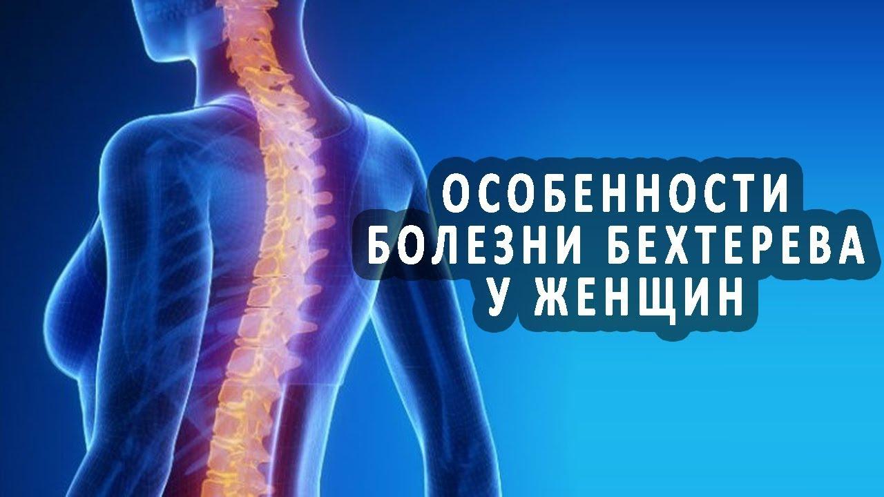 Photo of Болезнь Бехтерева – что это такое у женщин, симптомы и лечение