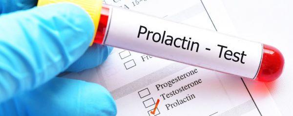 Photo of Пролактин гормон: что это такое у женщин, почему повышен, понижен, какая норма