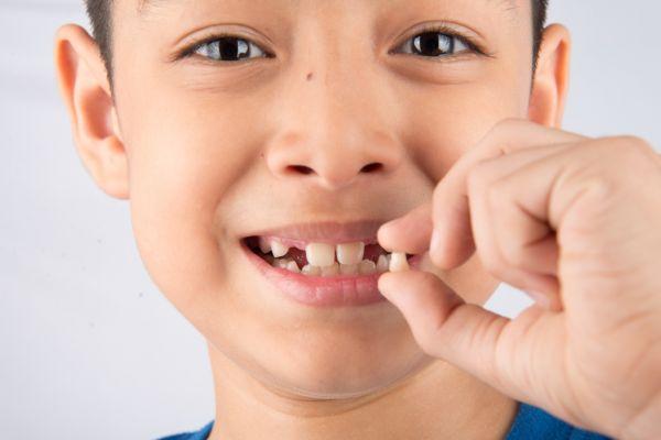 Photo of Когда у детей начинают выпадать молочные зубы: схема, таблица, в каком порядке