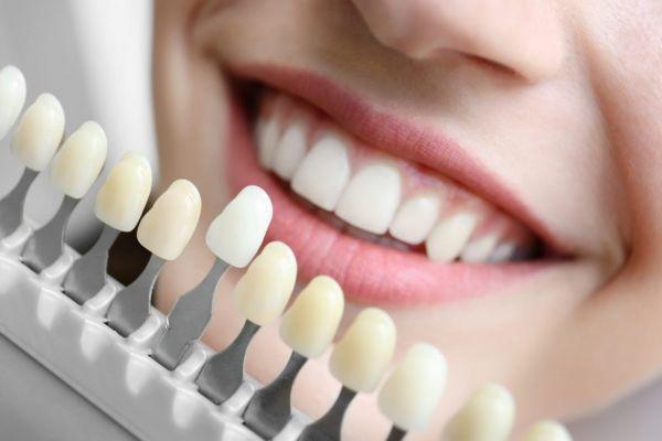 Photo of Можно ли носить виниры, если нет зубов вообще: когда нет передних и задних